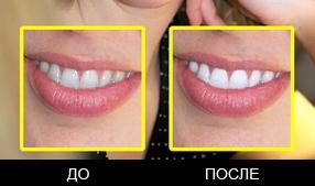 Плагин для отбелевания зубов 1
