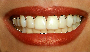 Как в фотошопе отбелить зубы 4