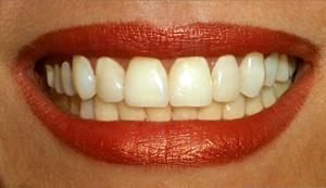 Как в фотошопе отбелить зубы 2