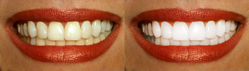 Как в фотошопе отбелить зубы 9
