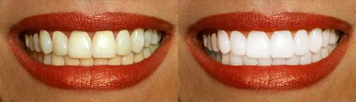 Как в фотошопе отбелить зубы 1