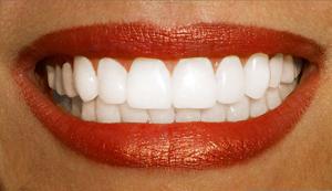 Как в фотошопе отбелить зубы 8
