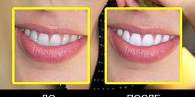 Плагин для отбелевания зубов